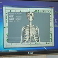 3D診断臨床例